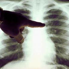 Görgey Artúr téri Szakrendelő - Tüdőszűrő
